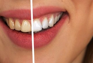 Home Remedies to Remove Stains From Dentures - image